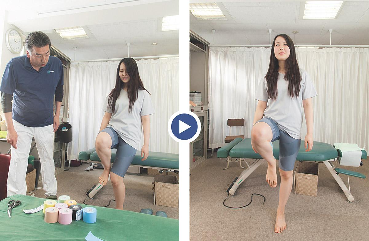 ▲治療前(左)の片足立ちも、終了後(右)はご覧の通り!